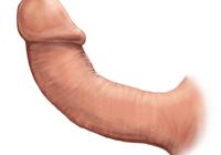Болезнь Пейрони — симпотоматика, диагностика, признаки, профилактика и леченение болезни Пейрони у мужчин