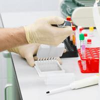 Иммуноферментный анализ: область применения и суть, ИФА-диагностика на примере сифилиса, ВИЧ и других вирусов