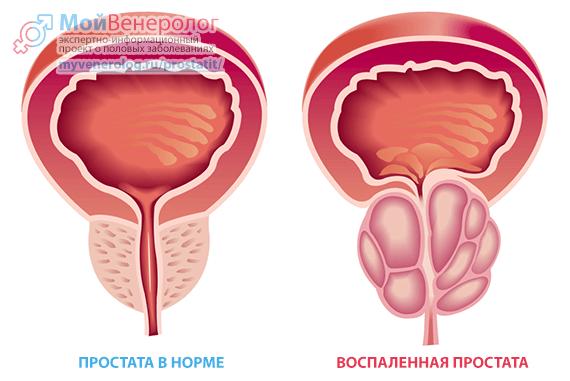 Простатит: симптомы, признаки и виды, диагностика и лечение простатита у мужчин
