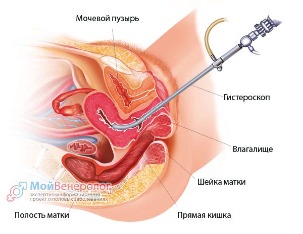 Гистероскопия при эндометрите