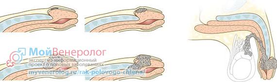 Рак полового члена: виды, симптомы и причины, диагностика