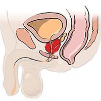 Сперматоцеле: причины, симптомы, диагностика и лечение