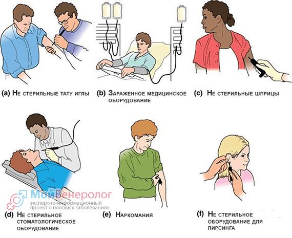 Гепатит Б: формы, пути передачи, симптомы, лечение и профилактика