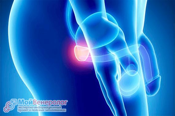 Является ли хламидиоз причиной простатита?