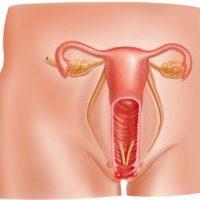 Воспаление слизистой влагалища – вагинит