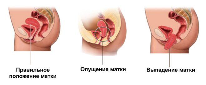Методики лечения при опущении матки