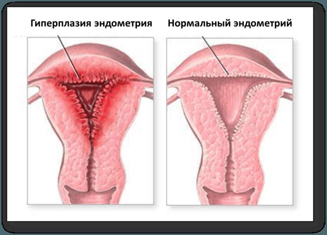 Атипическая форма гиперплазии эндометрия: может ли заболевание перейти в рак
