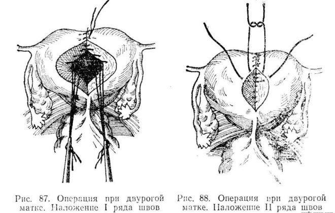 Метропластика