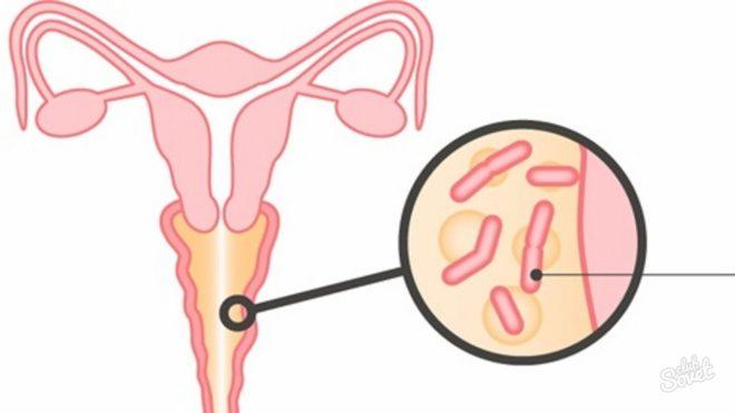 Бактериальный вагинит