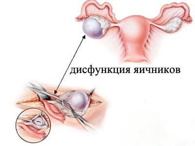 Как вылечить дисфункцию яичников и избежать бесплодия?