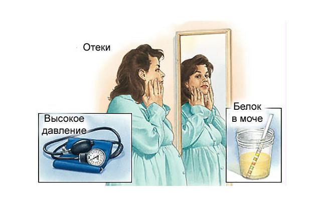 Нефропатия беременных: причины и особенности состояния, прогноз