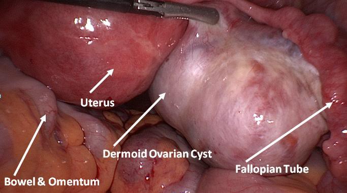 Дермоидная киста яичника: можно ли вылечить врожденную патологию?