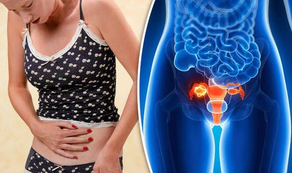 Рак яичников у женщин – симптомы признаки и лечение