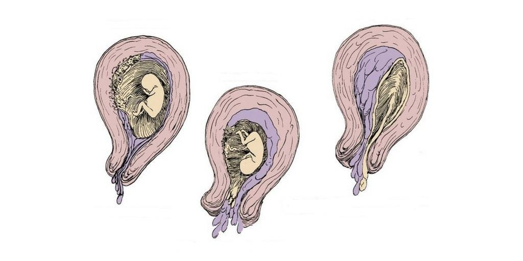 Самопроизвольное прерывание беременности: причины, симптомы, профилактика