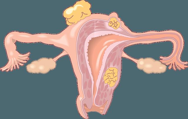 Современный подход к лечению миомы матки