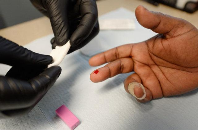 СПИД – реальные прогнозы для неутешительного диагноза