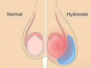 Гидроцеле: узнаём о водянке яичка подробно и без прикрас